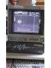 Scanner Rétinien Alcon Ultrascan